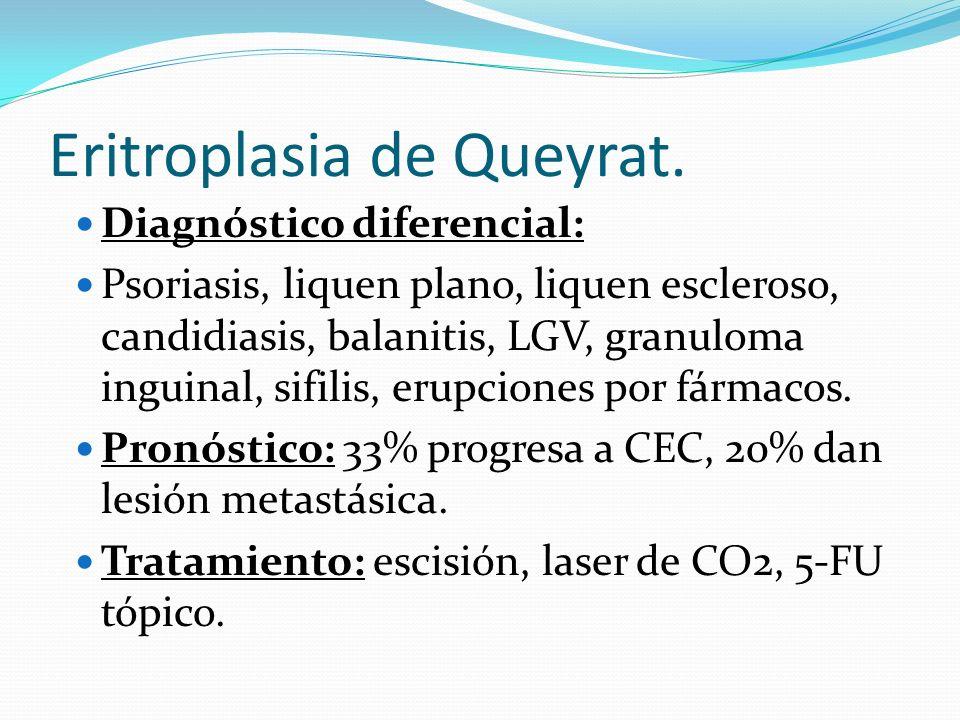 Eritroplasia de Queyrat. Diagnóstico diferencial: Psoriasis, liquen plano, liquen escleroso, candidiasis, balanitis, LGV, granuloma inguinal, sifilis,