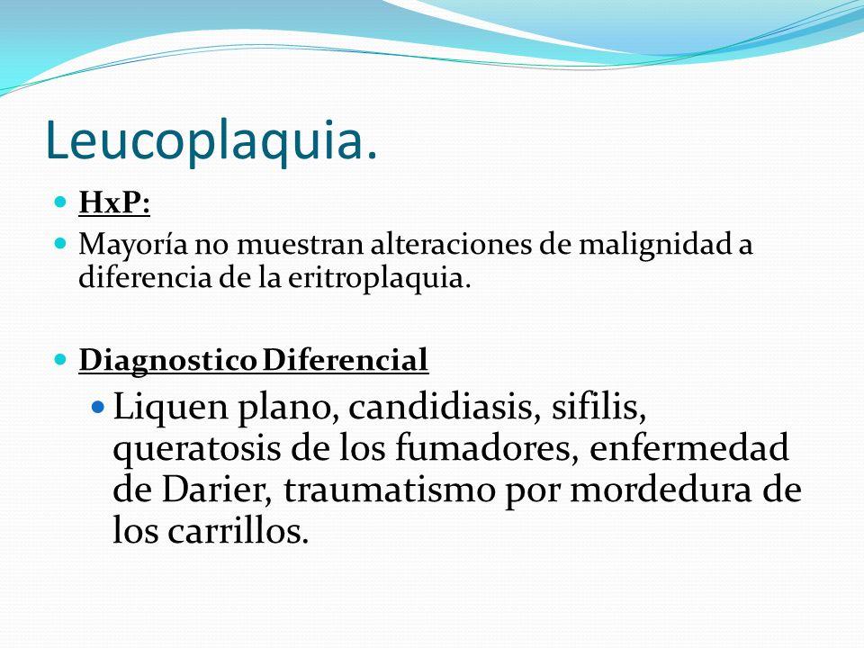 Leucoplaquia. HxP: Mayoría no muestran alteraciones de malignidad a diferencia de la eritroplaquia. Diagnostico Diferencial Liquen plano, candidiasis,