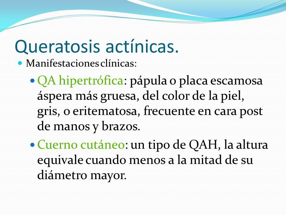 Queratosis actínicas. Manifestaciones clínicas: QA hipertrófica: pápula o placa escamosa áspera más gruesa, del color de la piel, gris, o eritematosa,