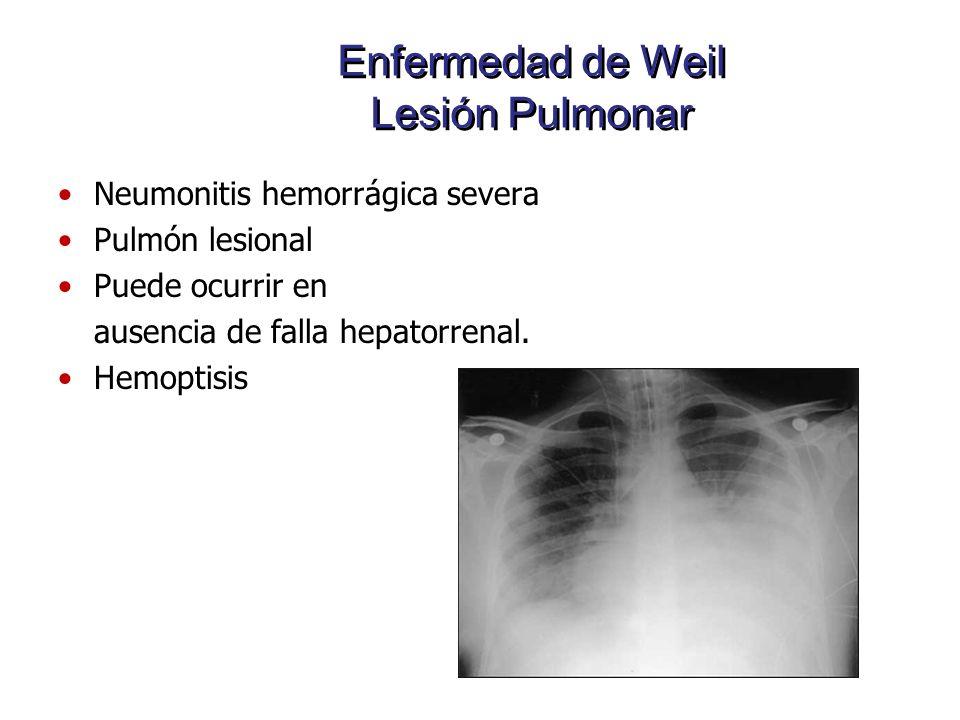 Enfermedad de Weil Lesión Pulmonar Neumonitis hemorrágica severa Pulmón lesional Puede ocurrir en ausencia de falla hepatorrenal. Hemoptisis