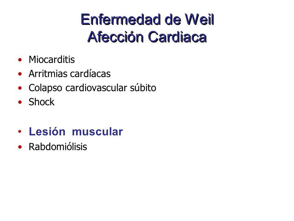 Enfermedad de Weil Afección Cardiaca Miocarditis Arritmias cardíacas Colapso cardiovascular súbito Shock Lesión muscular Rabdomiólisis