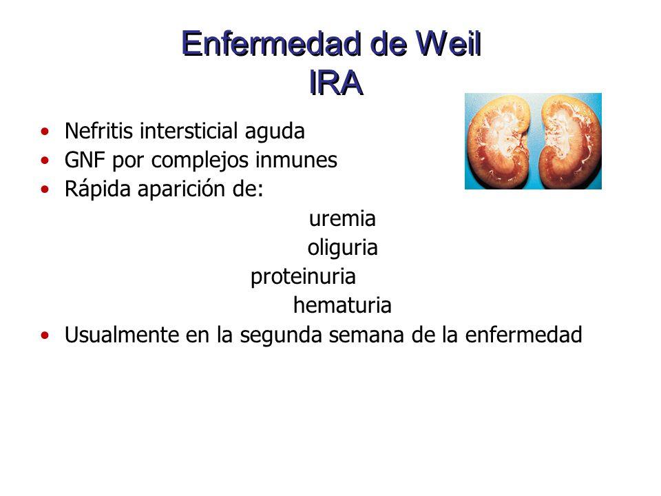 Enfermedad de Weil IRA Nefritis intersticial aguda GNF por complejos inmunes Rápida aparición de: uremia oliguria proteinuria hematuria Usualmente en