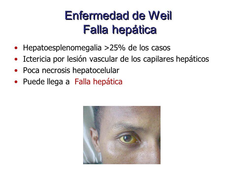 Enfermedad de Weil Falla hepática Hepatoesplenomegalia >25% de los casos Ictericia por lesión vascular de los capilares hepáticos Poca necrosis hepato