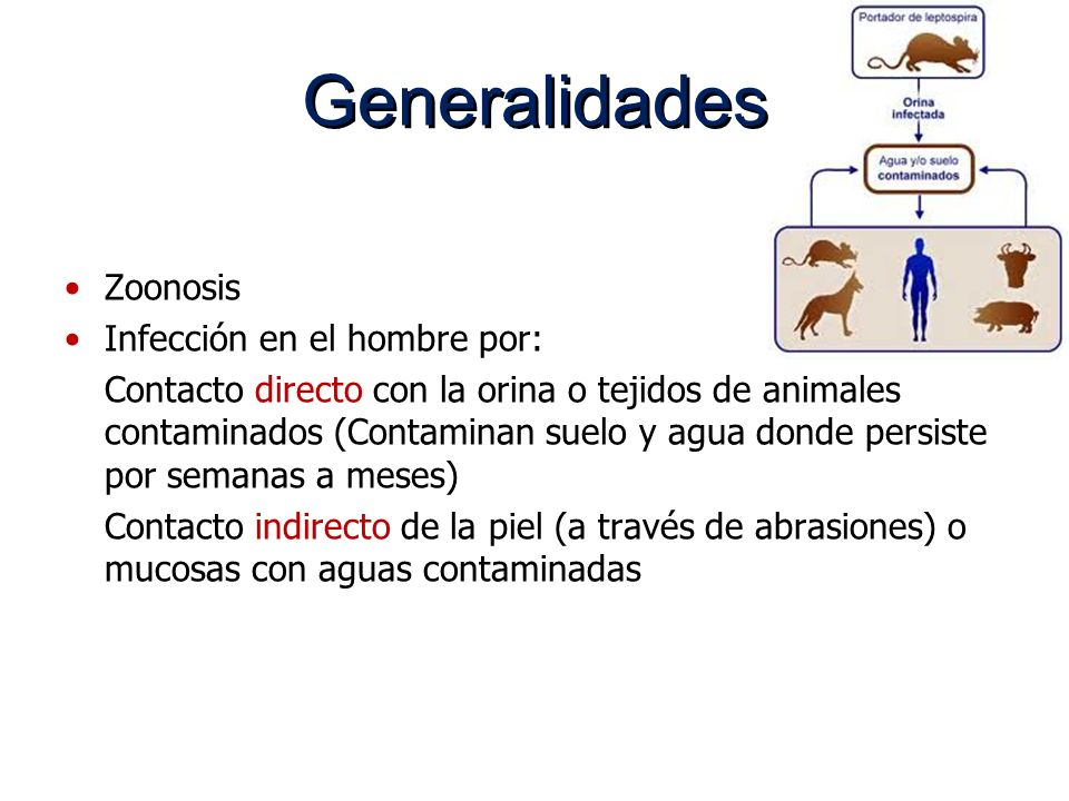 Generalidades Zoonosis Infección en el hombre por: Contacto directo con la orina o tejidos de animales contaminados (Contaminan suelo y agua donde per