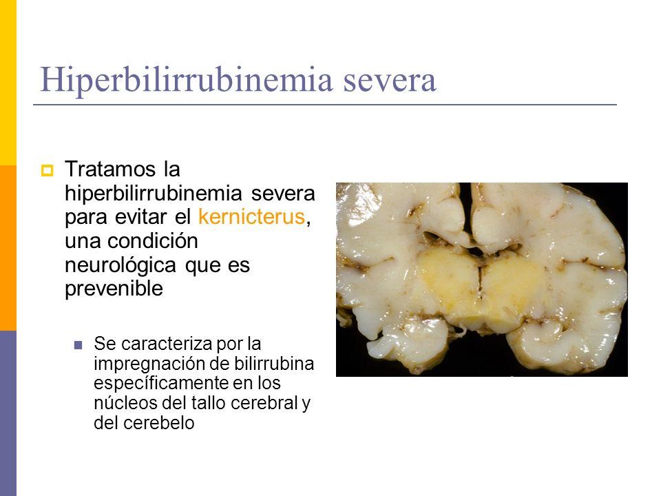 Hiperbilirrubinemia severa Tratamos la hiperbilirrubinemia severa para evitar el kernicterus, una condición neurológica que es prevenible Se caracteri