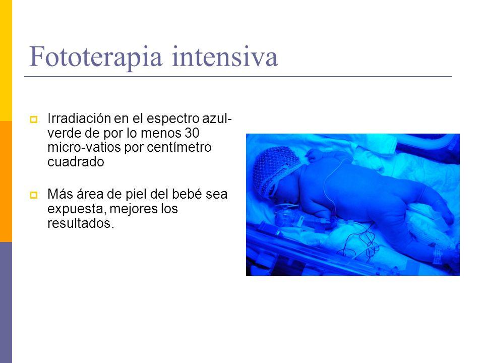 Fototerapia intensiva Irradiación en el espectro azul- verde de por lo menos 30 micro-vatios por centímetro cuadrado Más área de piel del bebé sea exp