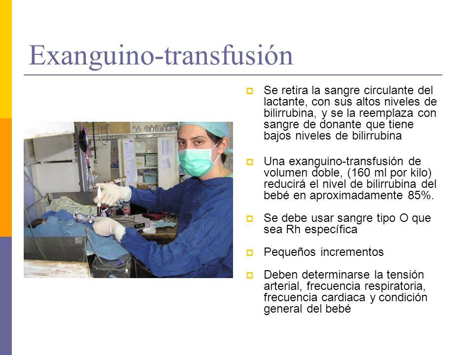 Exanguino-transfusión Se retira la sangre circulante del lactante, con sus altos niveles de bilirrubina, y se la reemplaza con sangre de donante que t