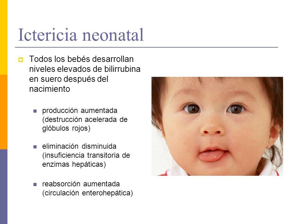 Ictericia neonatal Todos los bebés desarrollan niveles elevados de bilirrubina en suero después del nacimiento producción aumentada (destrucción acele