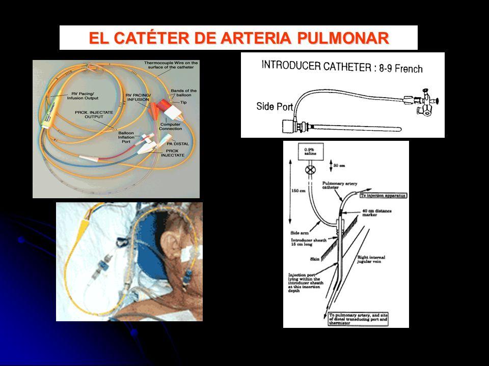 EL CATÉTER DE ARTERIA PULMONAR