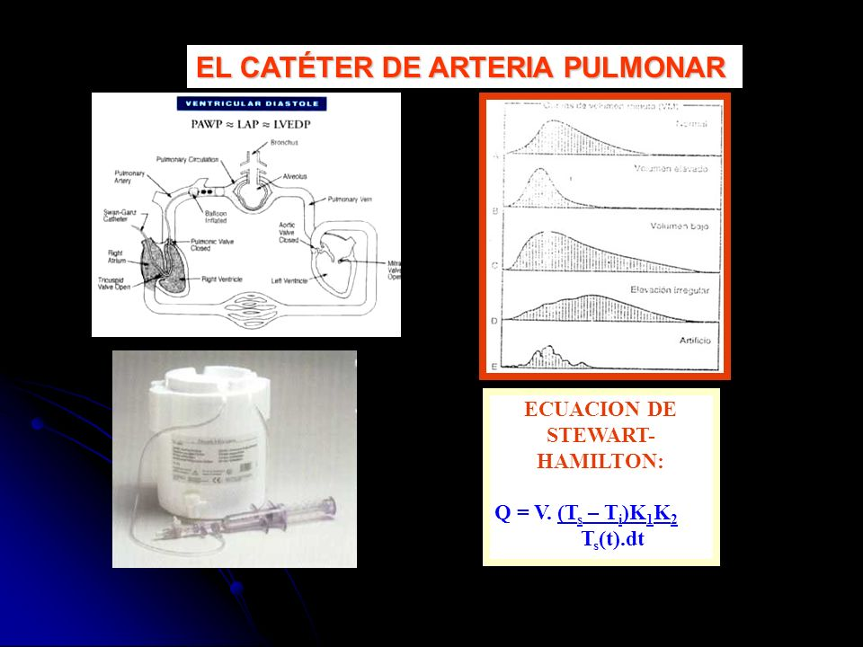 ECUACION DE STEWART- HAMILTON: Q = V. (T s – T i )K 1 K 2 T s (t).dt EL CATÉTER DE ARTERIA PULMONAR