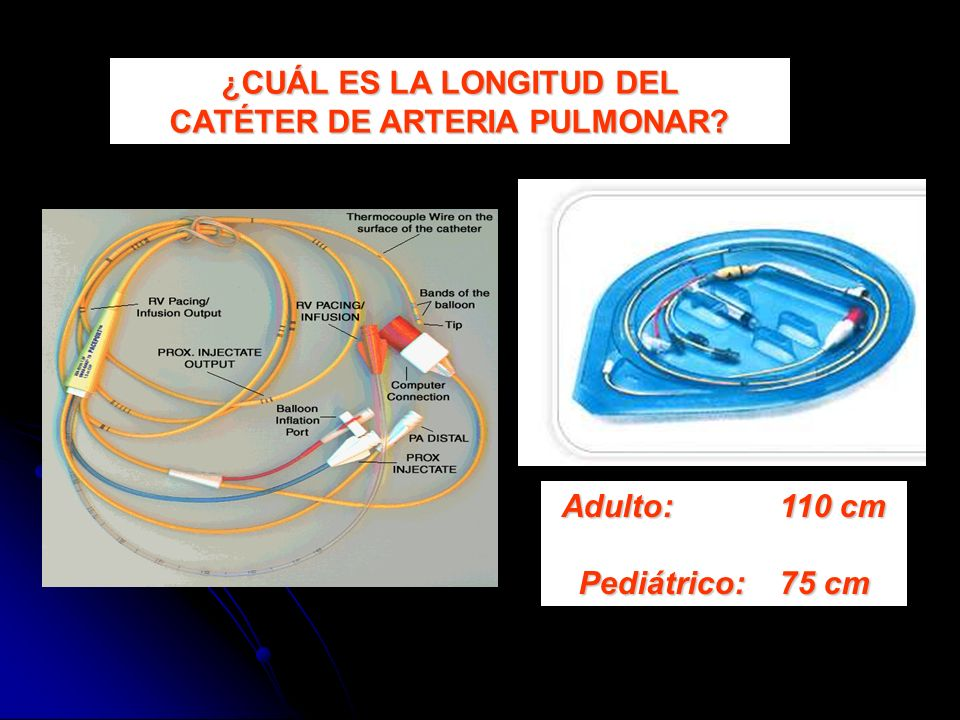 ¿CUÁL ES LA LONGITUD DEL CATÉTER DE ARTERIA PULMONAR? Adulto: 110 cm Pediátrico: 75 cm