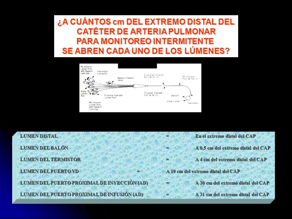 LUMEN DISTAL=En el extremo distal del CAP LUMEN DEL BALÓN=A 0,5 cm del extremo distal del CAP LUMEN DEL TERMISTOR=A 4 cm del extremo distal del CAP LU
