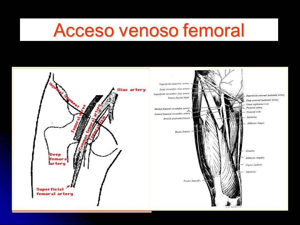 Acceso venoso femoral