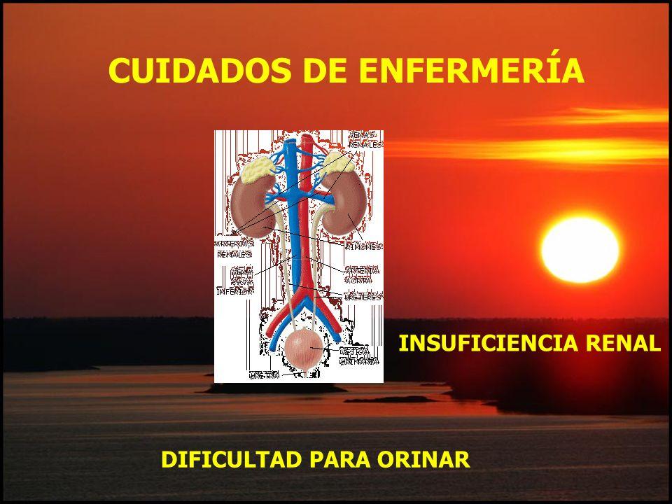 DIFICULTAD PARA ORINAR CUIDADOS DE ENFERMERÍA INSUFICIENCIA RENAL