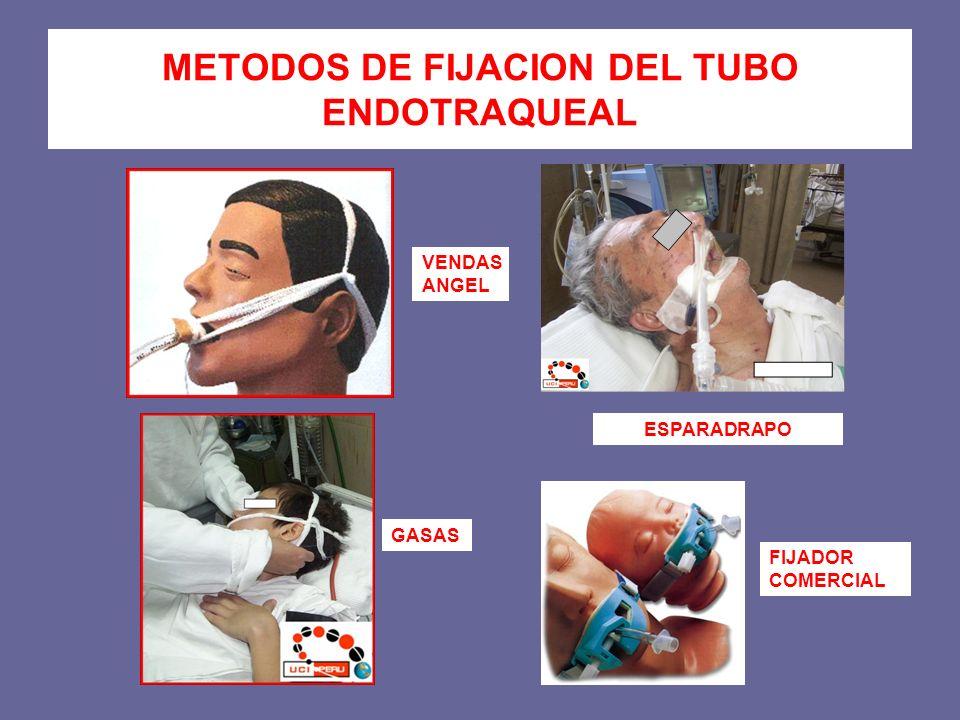 METODOS DE FIJACION DEL TUBO ENDOTRAQUEAL ESPARADRAPO GASAS VENDAS ANGEL FIJADOR COMERCIAL