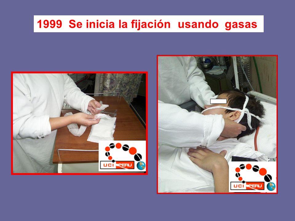 1999 Se inicia la fijación usando gasas