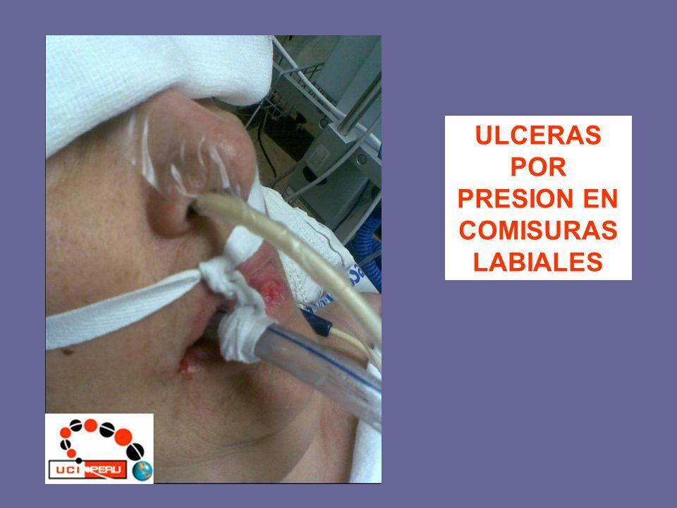 ULCERAS POR PRESION EN COMISURAS LABIALES