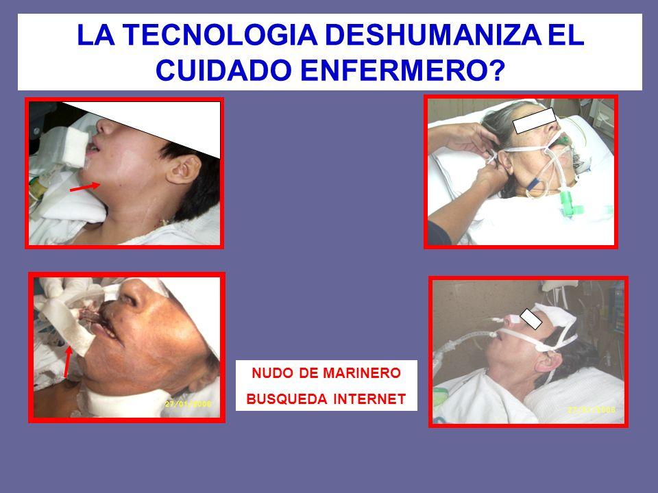 LA TECNOLOGIA DESHUMANIZA EL CUIDADO ENFERMERO? NUDO DE MARINERO BUSQUEDA INTERNET