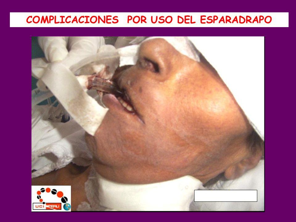 1.La técnica Angel 2 modificada evito laceraciones peribucales y extubaciones en los pacientes.