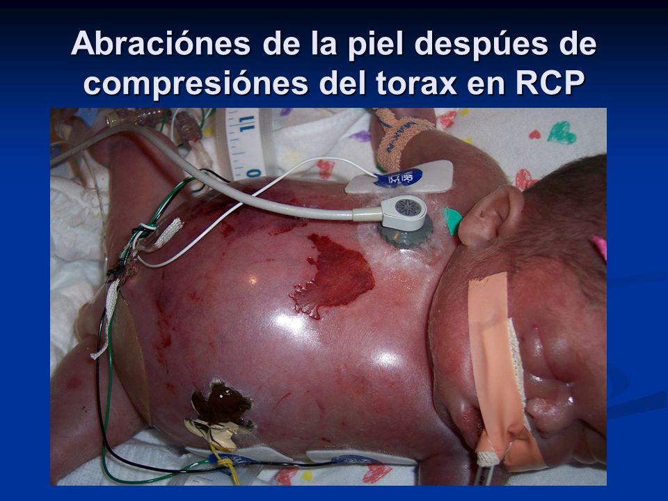 Abraciónes de la piel despúes de compresiónes del torax en RCP