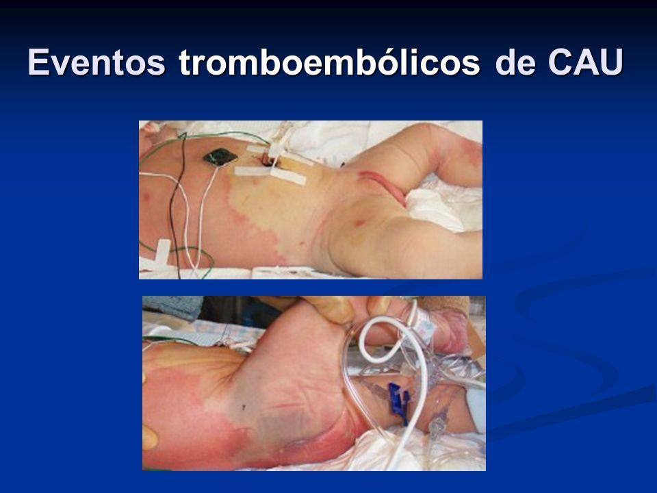 Eventos tromboembólicos de CAU