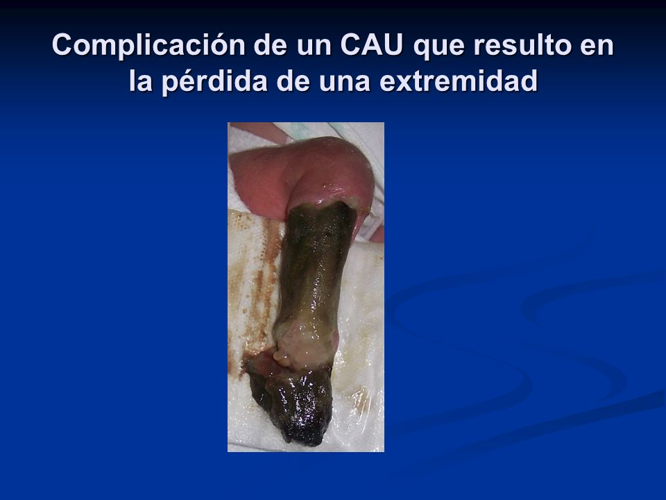 Complicación de un CAU que resulto en la pérdida de una extremidad