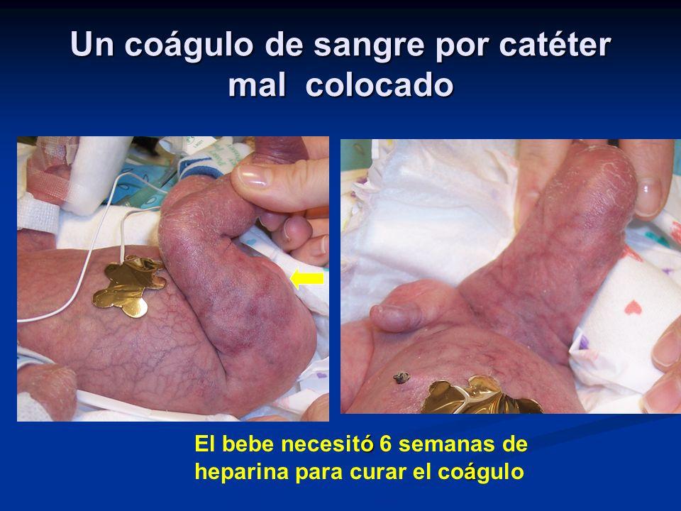 Un coágulo de sangre por catéter mal colocado ó á El bebe necesitó 6 semanas de heparina para curar el coágulo
