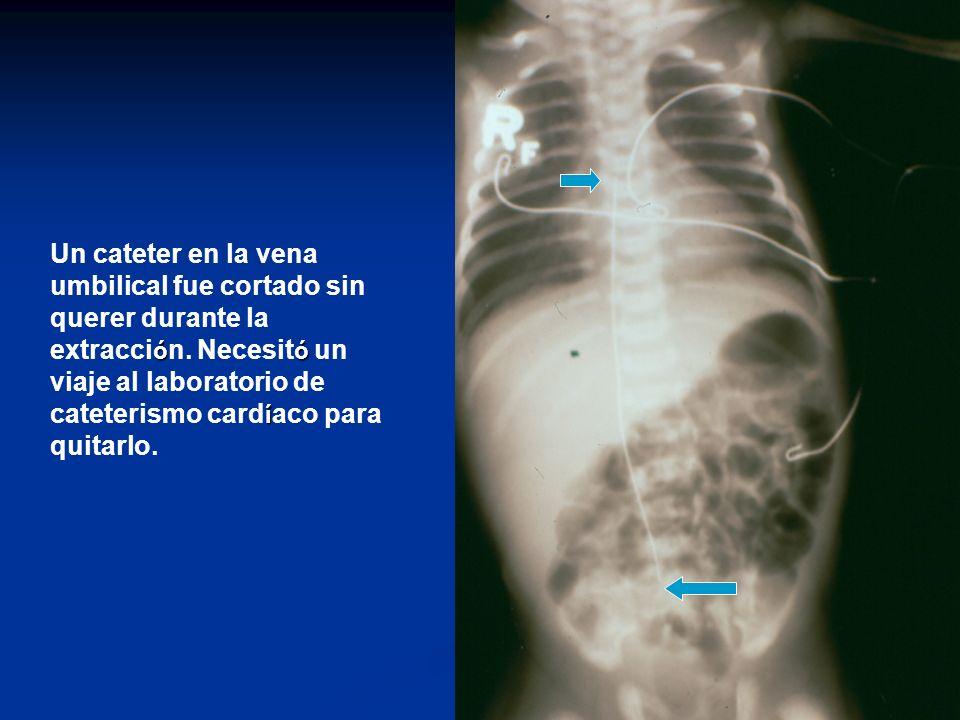 óó í Un cateter en la vena umbilical fue cortado sin querer durante la extracci ó n.