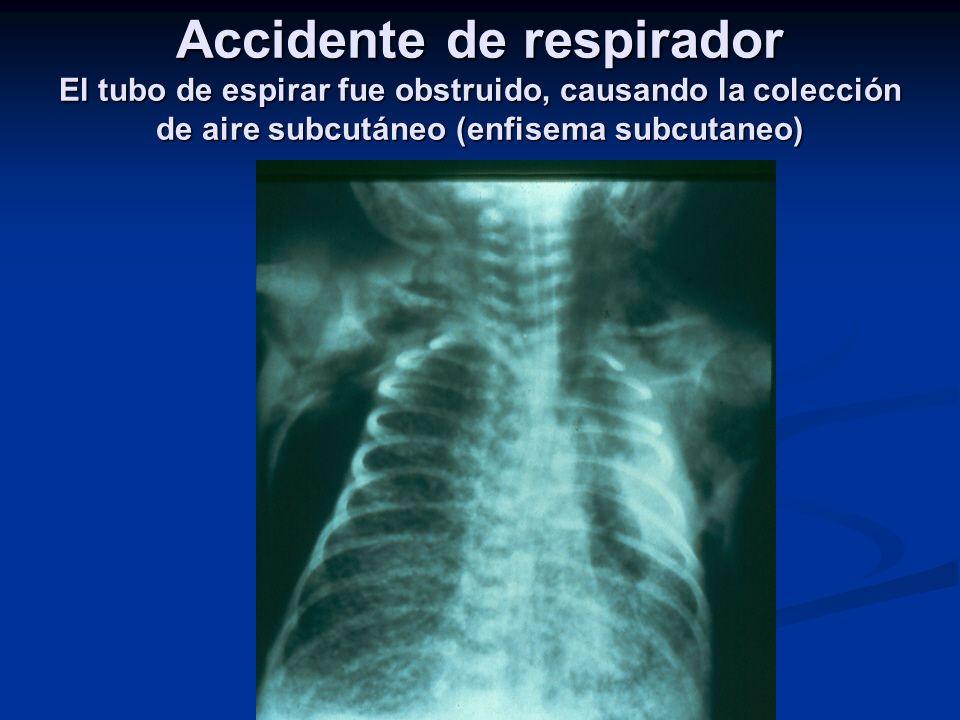 Accidente de respirador El tubo de espirar fue obstruido, causando la colección de aire subcutáneo (enfisema subcutaneo)