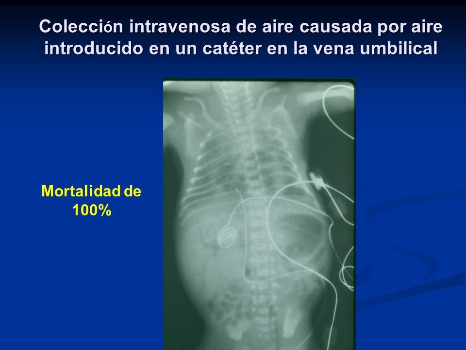 Colecci ó n intravenosa de aire causada por aire introducido en un catéter en la vena umbilical Mortalidad de 100%