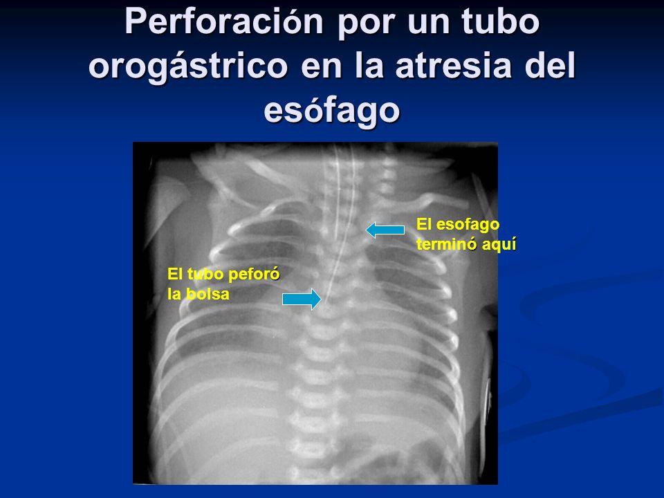 Perforaci ó n por un tubo orogástrico en la atresia del es ó fago óí El esofago terminó aquí ó El tubo peforó la bolsa