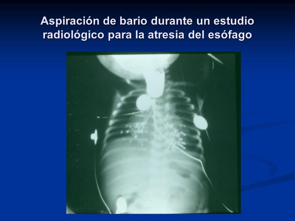 Aspiración de bario durante un estudio radiológico para la atresia del esófago