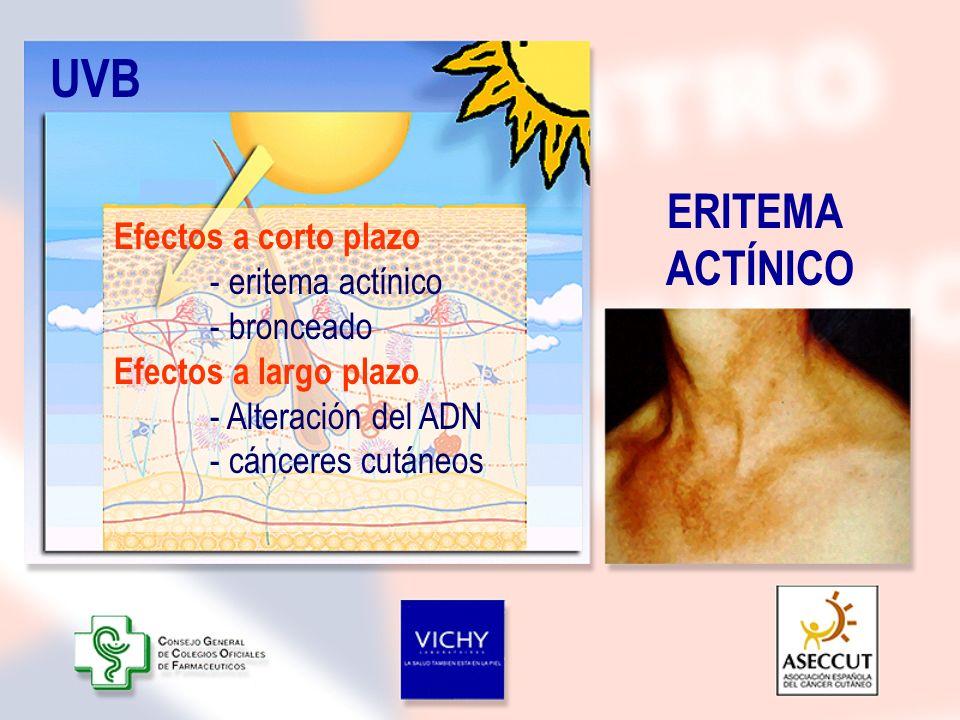 UVB ERITEMA ACTÍNICO Efectos a corto plazo - eritema actínico - bronceado Efectos a largo plazo - Alteración del ADN - cánceres cutáneos