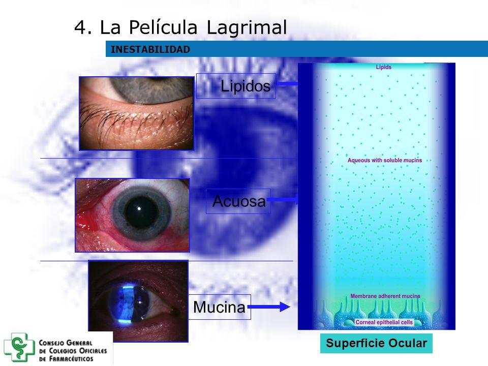 MucinaLipidos Acuosa Superficie Ocular 4. La Película Lagrimal INESTABILIDAD