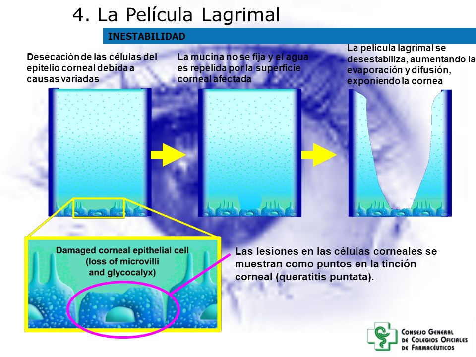Desecación de las células del epitelio corneal debida a causas variadas La mucina no se fija y el agua es repelida por la superficie corneal afectada