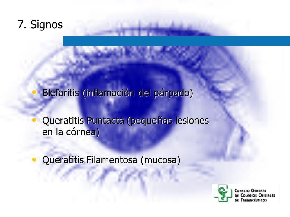 7. Signos Blefaritis (inflamaci ó n del p á rpado) Blefaritis (inflamaci ó n del p á rpado) Queratitis Puntacta (peque ñ as lesiones en la c ó rnea) Q