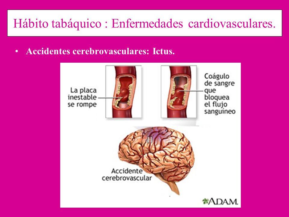Hábito tabáquico : Enfermedades cardiovasculares. Accidentes cerebrovasculares: Ictus.