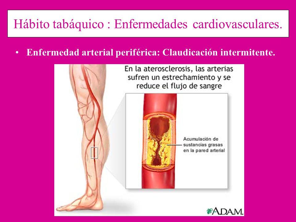 Hábito tabáquico : Enfermedades cardiovasculares. Enfermedad arterial periférica: Claudicación intermitente.