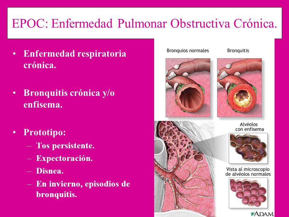 EPOC: Enfermedad Pulmonar Obstructiva Crónica. Enfermedad respiratoria crónica. Bronquitis crónica y/o enfisema. Prototipo: –Tos persistente. –Expecto