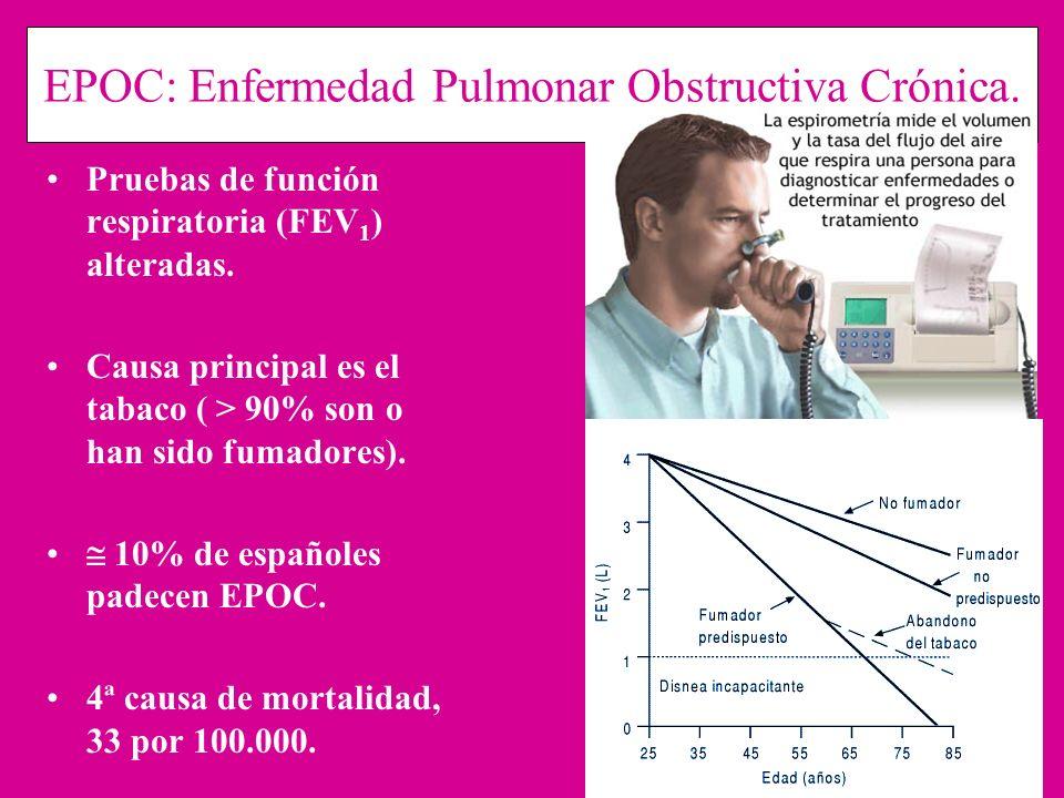 EPOC: Enfermedad Pulmonar Obstructiva Crónica. Pruebas de función respiratoria (FEV 1 ) alteradas. Causa principal es el tabaco ( > 90% son o han sido