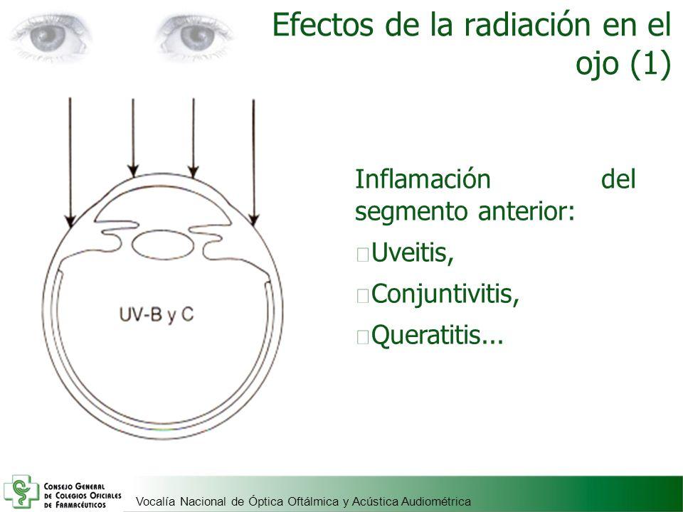 Vocalía Nacional de Óptica Oftálmica y Acústica Audiométrica Efectos de la radiación en el ojo (1) Inflamación del segmento anterior: Uveitis, Conjunt
