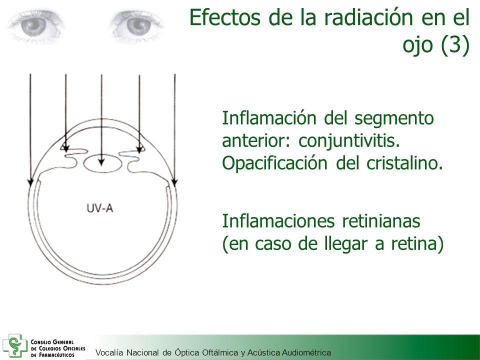 Vocalía Nacional de Óptica Oftálmica y Acústica Audiométrica Efectos de la radiación en el ojo (3) Inflamación del segmento anterior: conjuntivitis. O