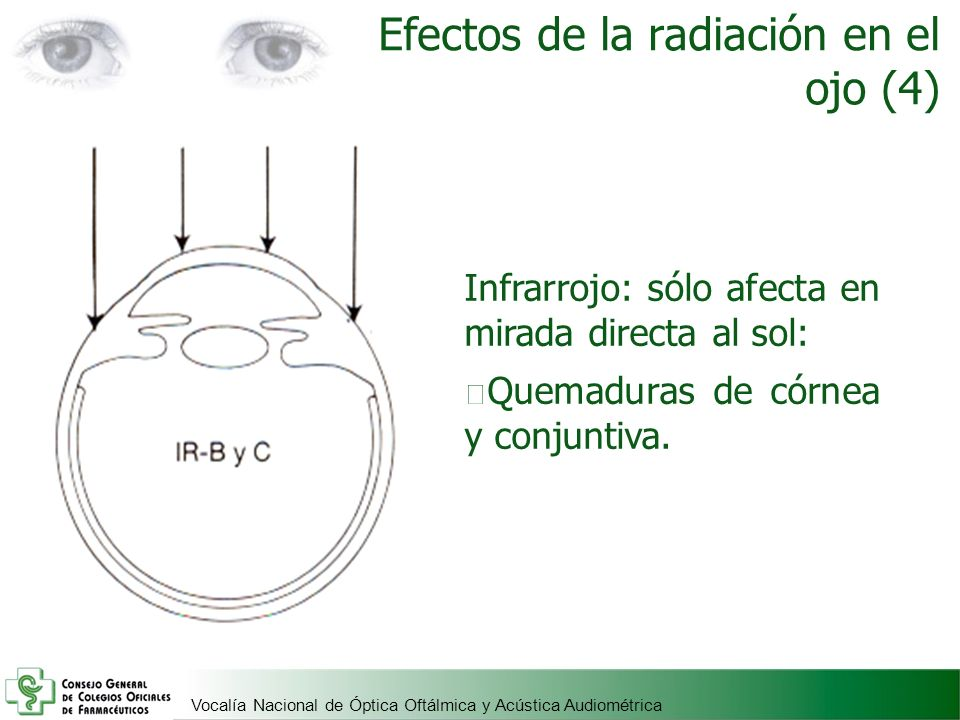 Vocalía Nacional de Óptica Oftálmica y Acústica Audiométrica Efectos de la radiación en el ojo (4) Infrarrojo: sólo afecta en mirada directa al sol: Q