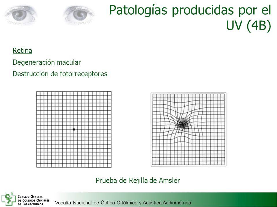 Vocalía Nacional de Óptica Oftálmica y Acústica Audiométrica Retina Degeneración macular Destrucción de fotorreceptores Patologías producidas por el U