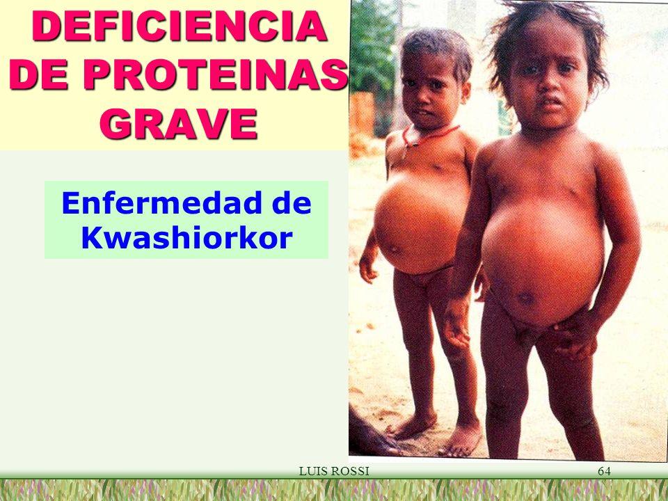 LUIS ROSSI64 DEFICIENCIA DE PROTEINAS GRAVE Enfermedad de Kwashiorkor