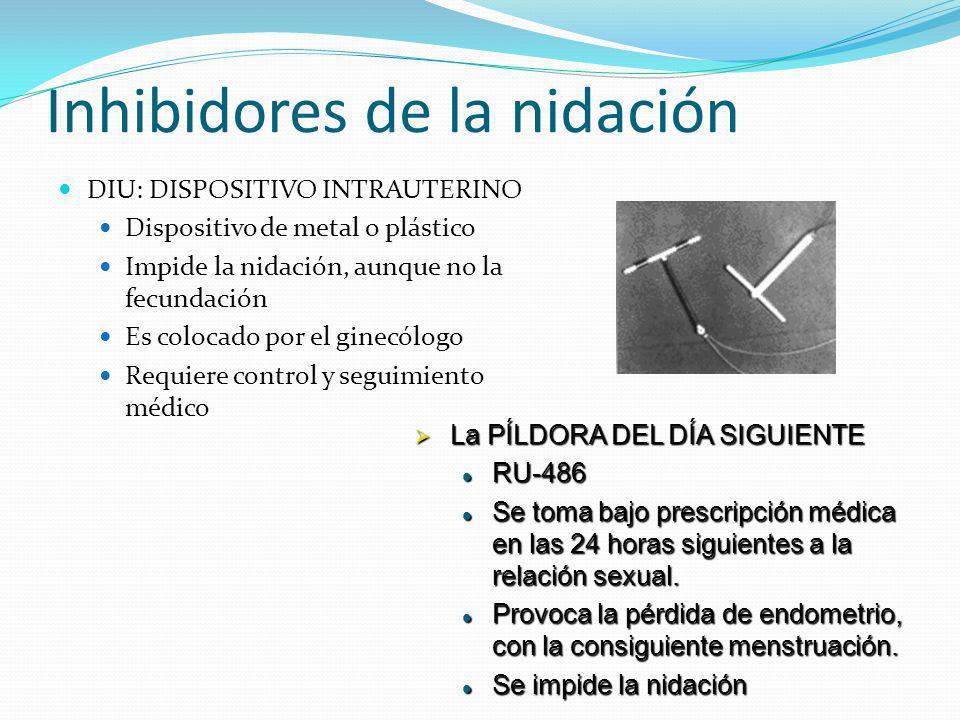 Inhibidores de la nidación DIU: DISPOSITIVO INTRAUTERINO Dispositivo de metal o plástico Impide la nidación, aunque no la fecundación Es colocado por