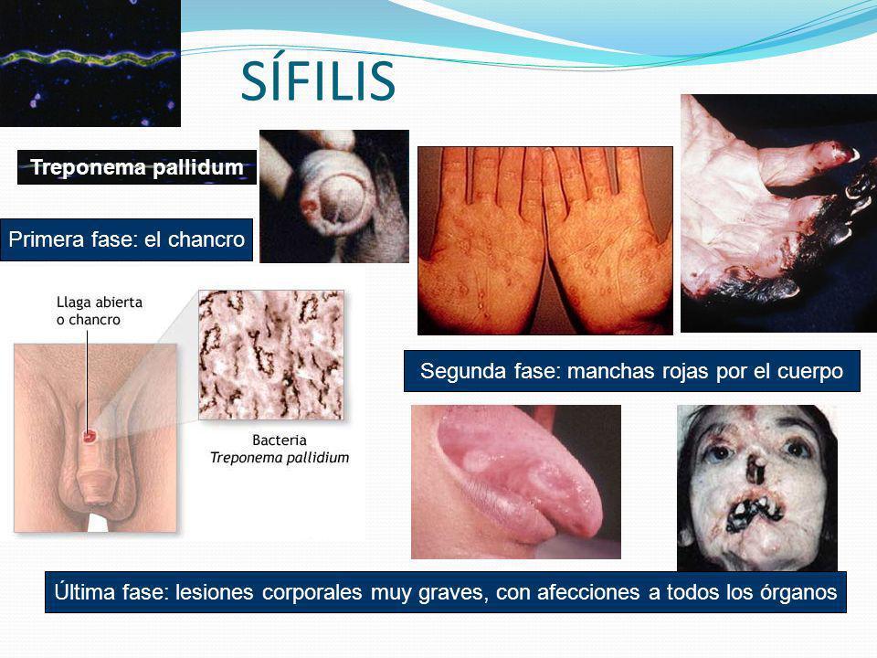 SÍFILIS Treponema pallidum Primera fase: el chancro Segunda fase: manchas rojas por el cuerpo Última fase: lesiones corporales muy graves, con afeccio