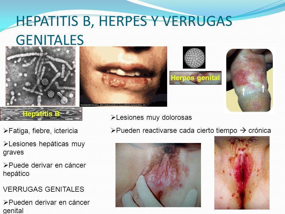 HEPATITIS B, HERPES Y VERRUGAS GENITALES Hepatitis B Fatiga, fiebre, ictericia Lesiones hepáticas muy graves Puede derivar en cáncer hepático Herpes g