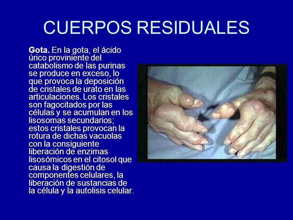 CUERPOS RESIDUALES Gota. En la gota, el ácido úrico proviniente del catabolismo de las purinas se produce en exceso, lo que provoca la deposición de c