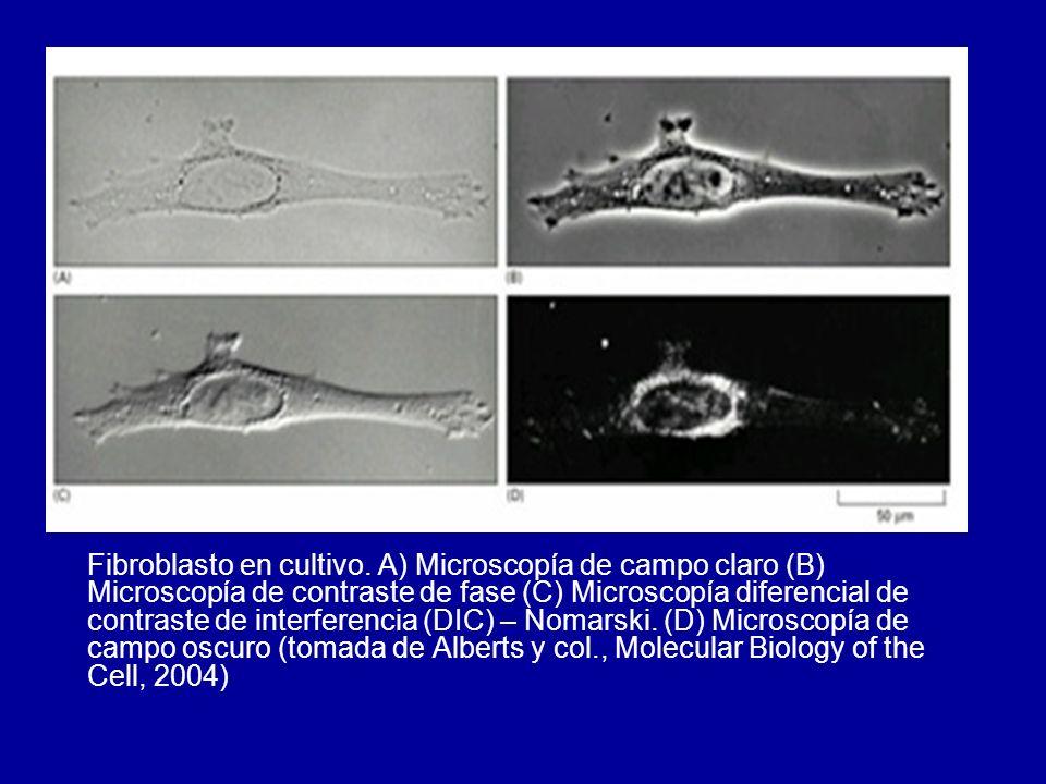 Fibroblasto en cultivo. A) Microscopía de campo claro (B) Microscopía de contraste de fase (C) Microscopía diferencial de contraste de interferencia (